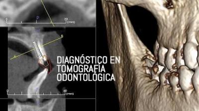 Diagnóstico Tomográfico en Odontología
